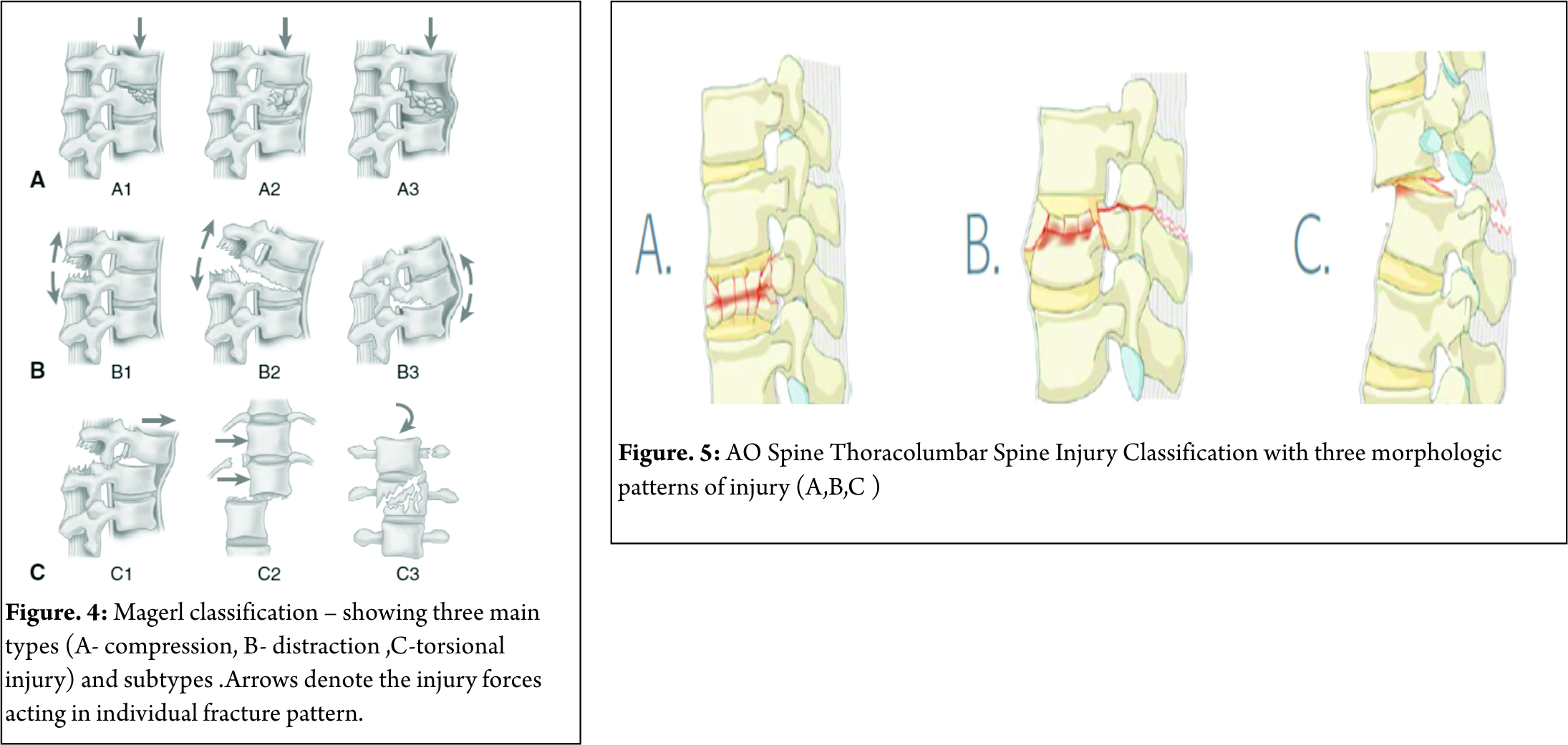 Thoracolumbar Fractures: Classification and Clinical Relevance ...