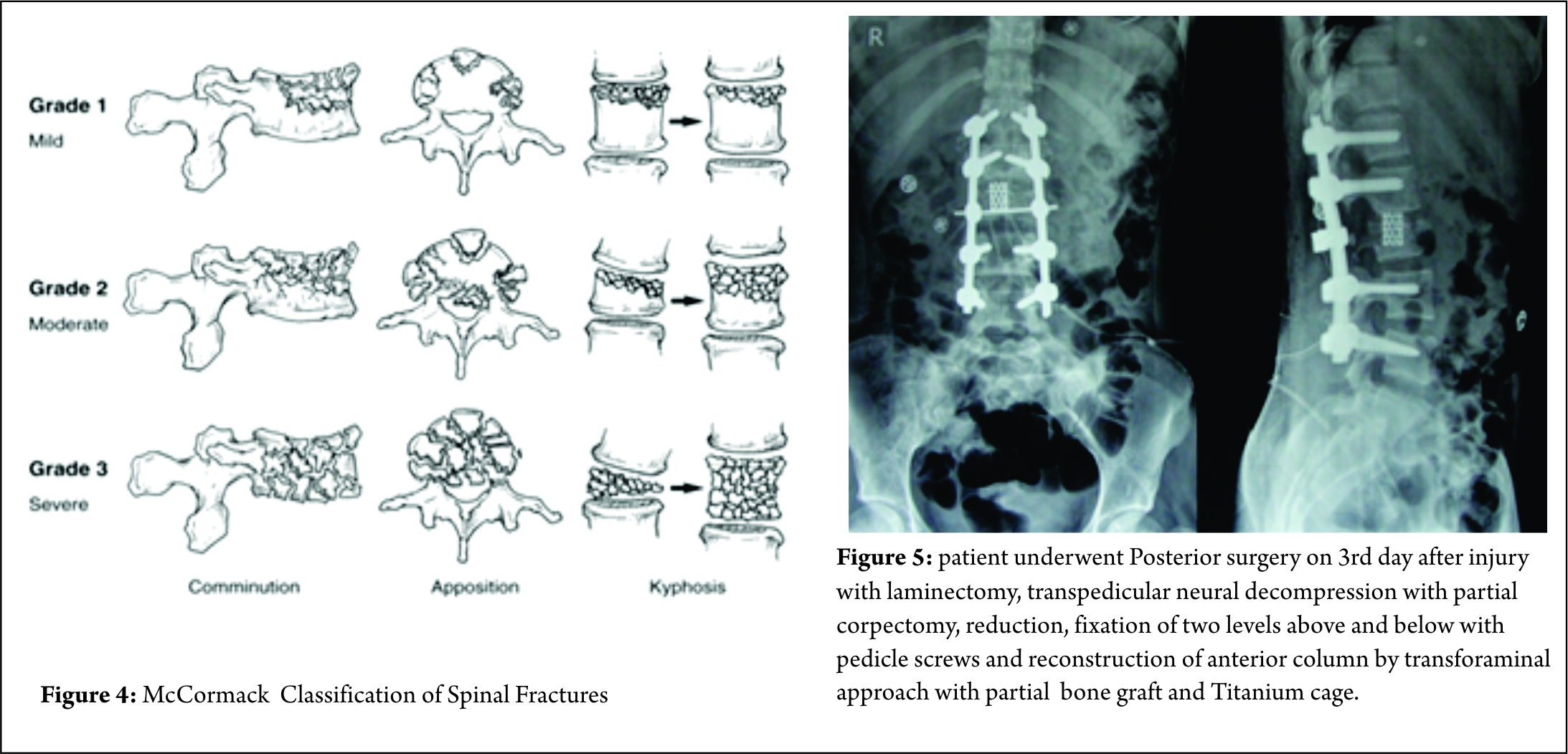 treatment algorithm for unstable burst fracture